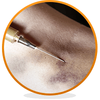 heroin-marks-veins