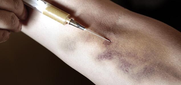 Heroin Track Marks