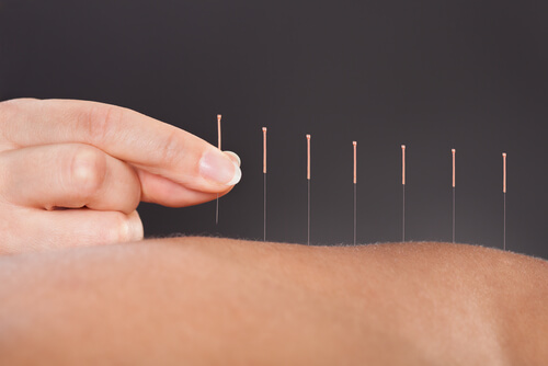 Close-up Of A Person Getting An Acupuncture Treatment