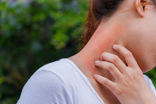 woman scratching the itchy rash on the neck