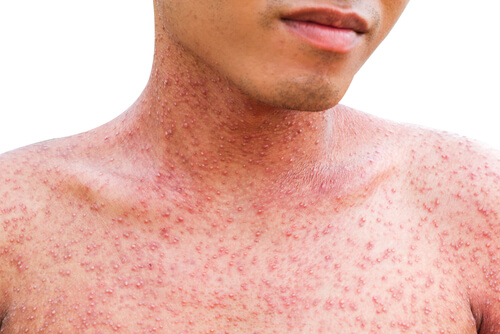 man with allergic hives and rash