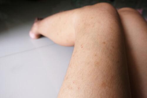 woman with dermopathy