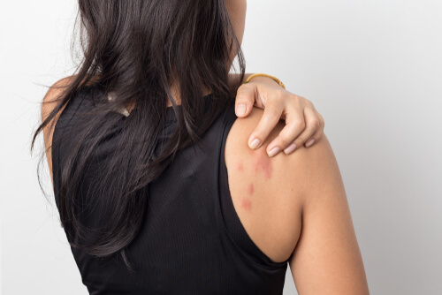 itching woman with rash