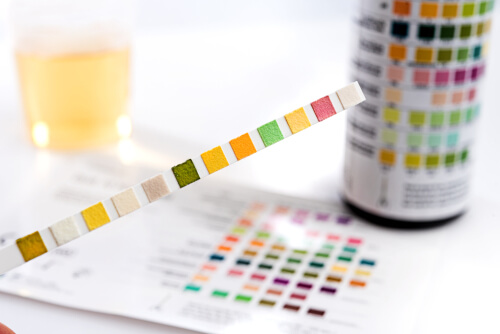 Reagent Strip for Wellbutrin urine test