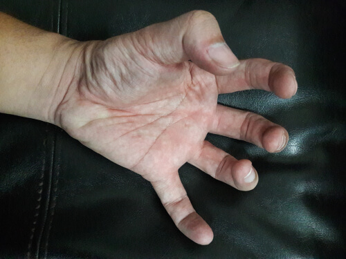 man with seizures