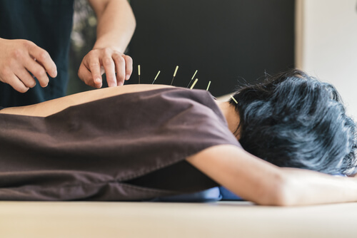 acupuncture as natural pain reliever