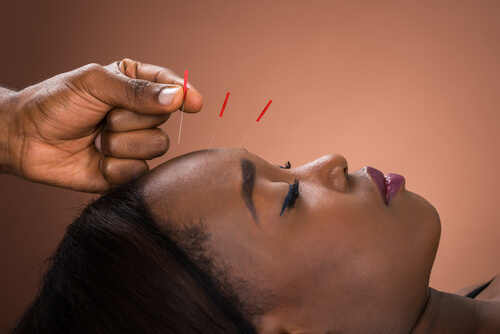 Therapist Giving acupuncture addiction Treatment