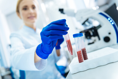 woman tests blood samples