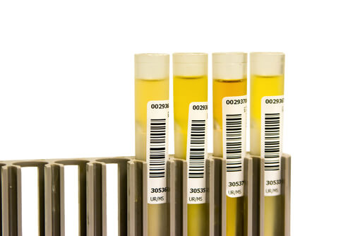 samples of urine for dug tests