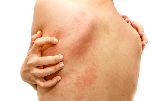 woman with rash and hives