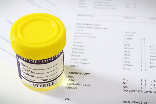 urine drug test results