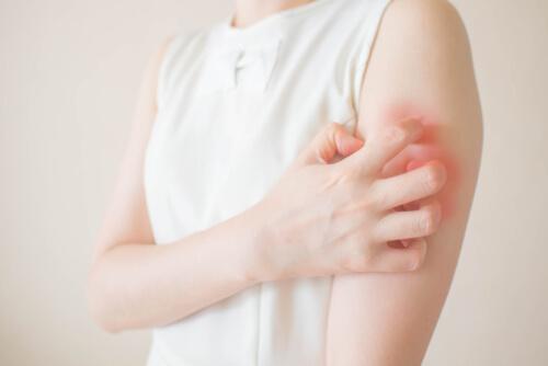 Skin Rash As Result Of An Allergy
