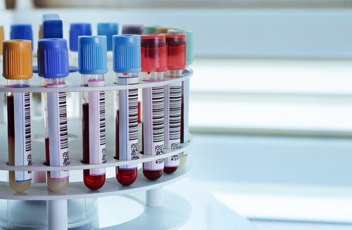 Testing Samples In Tubes