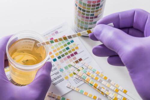 what affect drug test