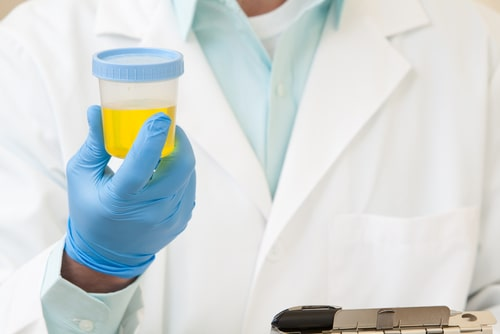 A doctor holds a urine sample.