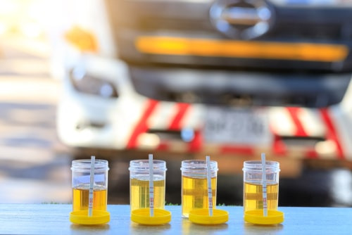 DOT drivers urine Testing for Substance Abuse.