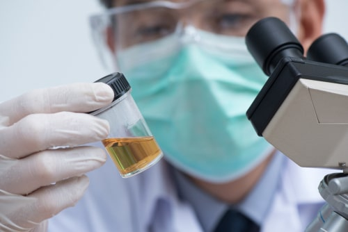 Doctor analyzes Aderrall urine test sample.