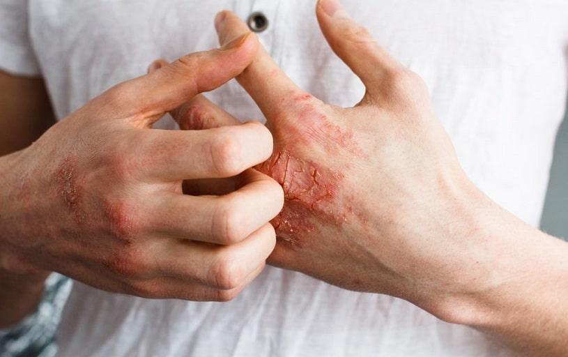 Man has meth sores on hands.