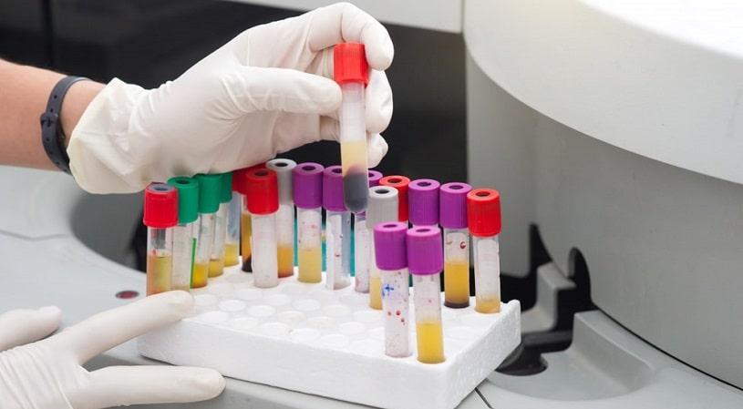 Lab worker holding blood samples.