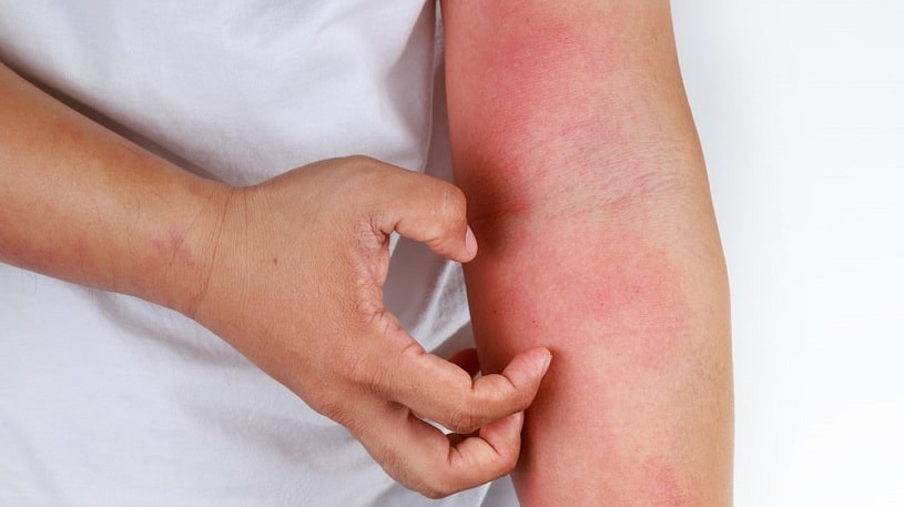 Man with itchy skin due to codeine allergy.