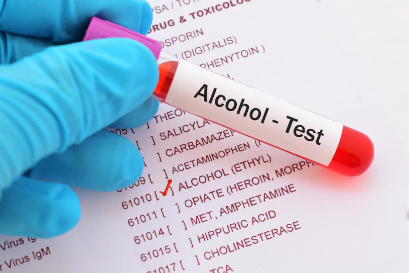 A medical worker holds an alcohol test.