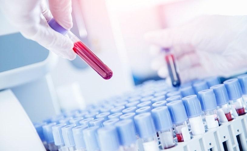 Lab worker preparing test blood for detection.