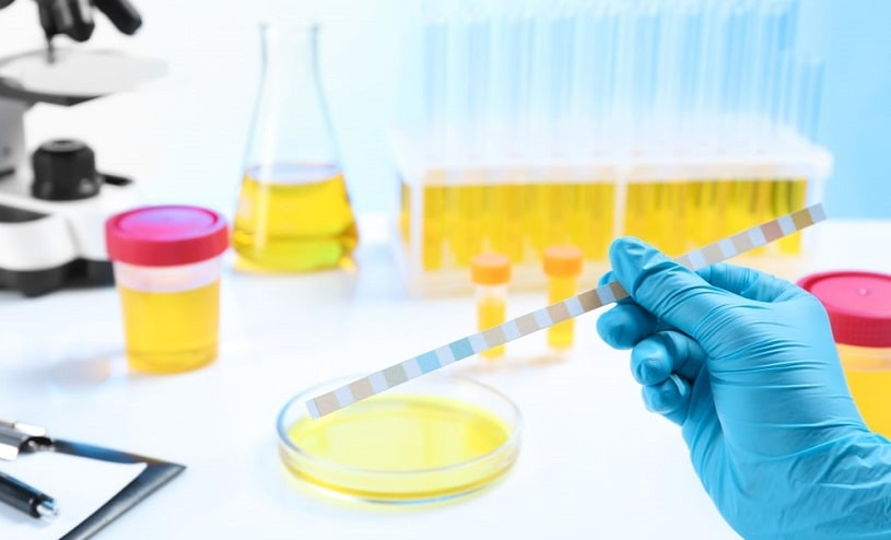 Urine samples in a laboratory on the table.