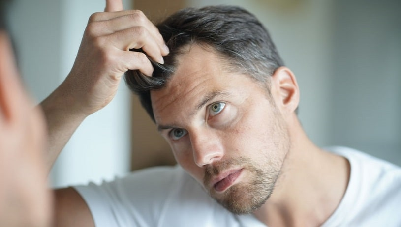 Man worried about hair loss after using Kratom.