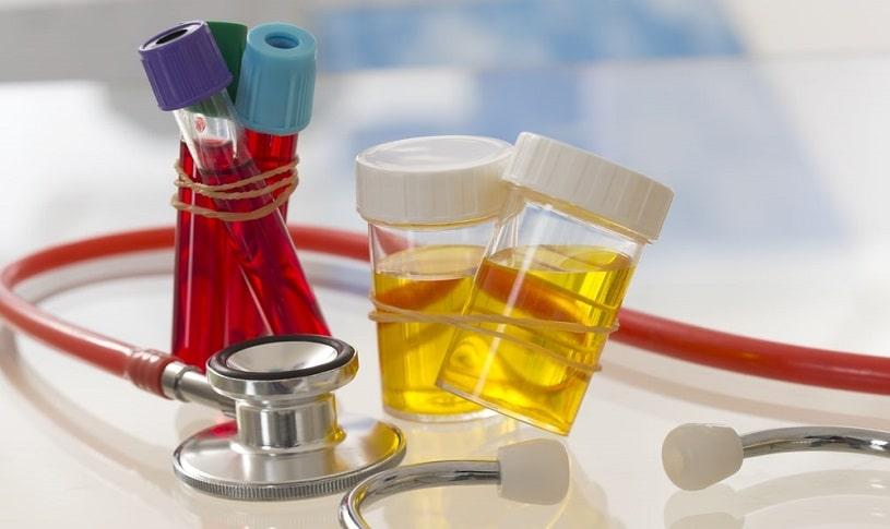 Urine samples and blood samples prepared for tramadol drug test.