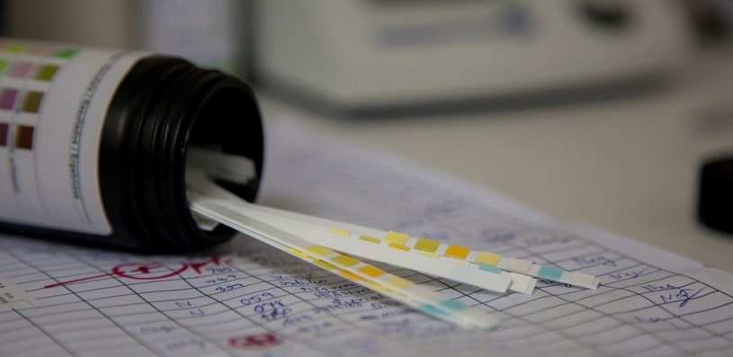 Urine test strips on the papers.