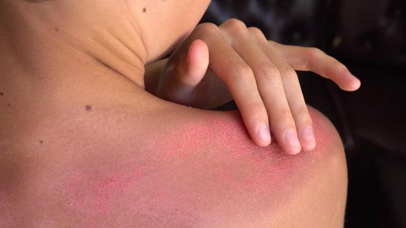 A person with a severe sunburn.