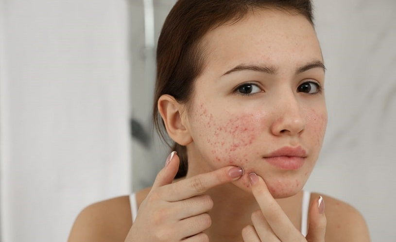 Woman with acne looking in the mirror.