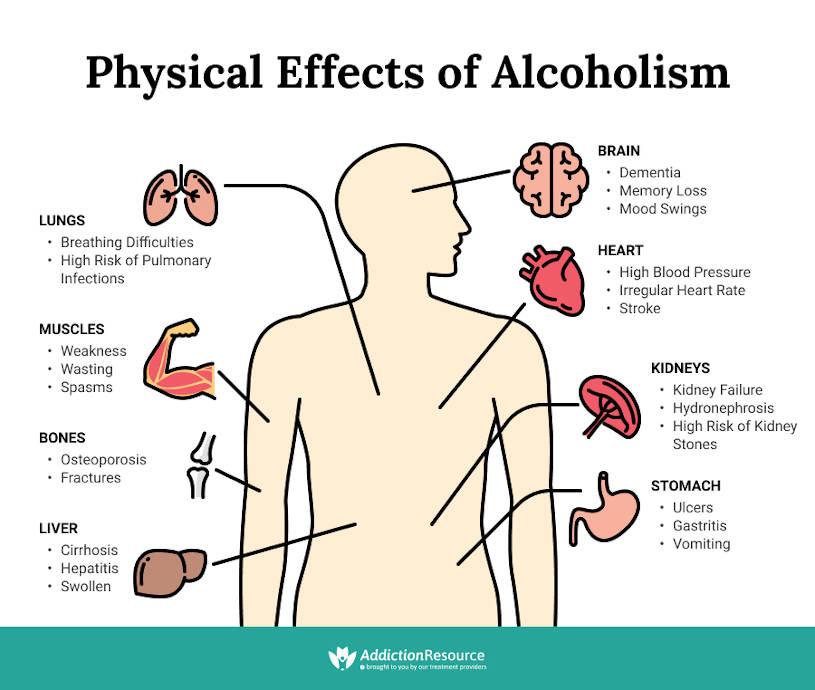 Physical effects of alcoholism on the body.