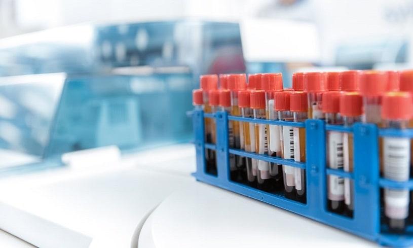 Blood test samples in tubes.